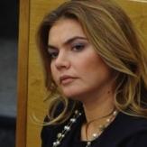 Алина Кабаева после пластической операции