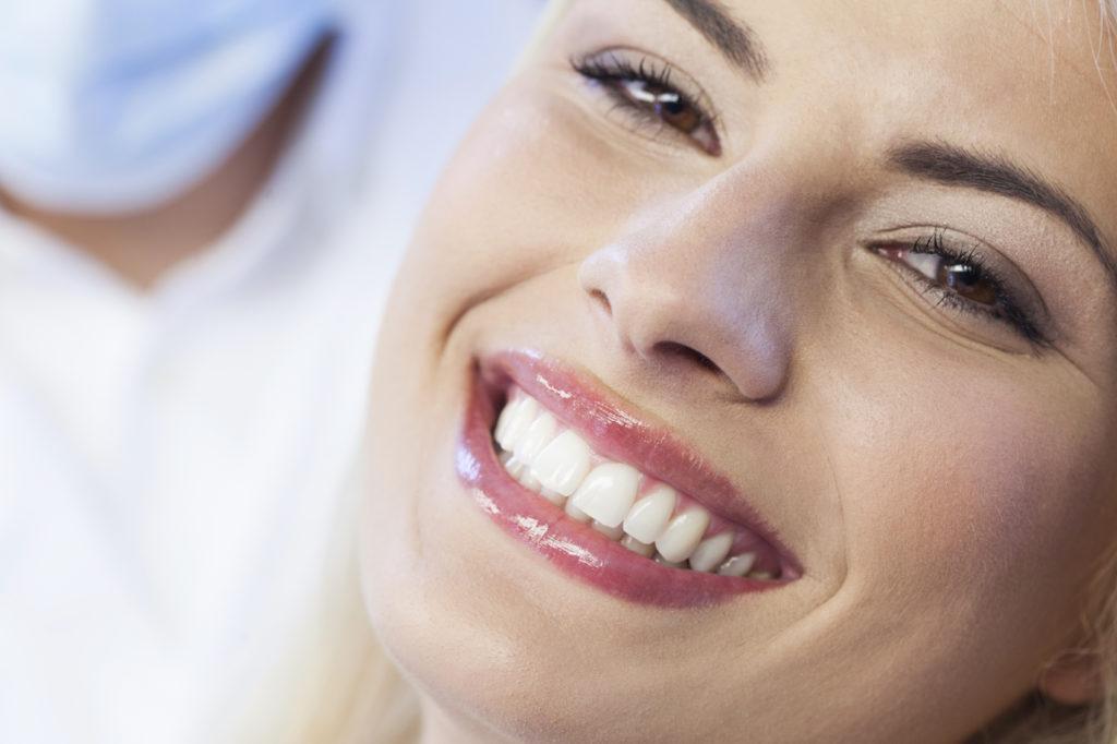 Капы для выравнивания зубов – альтернатива брекет-системам